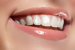 Perfect smile. Beautiful natural full lips and white teeth. Teeth whitening. Royalty Free Stock Photo