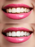 Perfect smile before and after bleaching. Dental care and whitening teeth Royalty Free Stock Photos