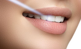 Perfect smile after bleaching. Dental care and whitening teeth. Stock Images