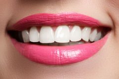 Perfect smile after bleaching. Dental care and whitening teeth. Woman smile with great teeth. Close-up of smile with white healthy Royalty Free Stock Photography