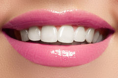 Perfect smile after bleaching. Dental care and whitening teeth. Woman smile with great teeth. Close-up of smile with white healthy Stock Images