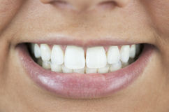 Perfect Smile, White Teeth Stock Photos