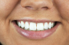 Perfect Smile, White Teeth Royalty Free Stock Images