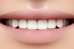Perfect smile of young beautiful woman, perfect healthy white teeth. Dental whitening, ortodont, care tooth and wellness Stock Images