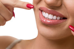 Perfect straight white teeth Royalty Free Stock Photography