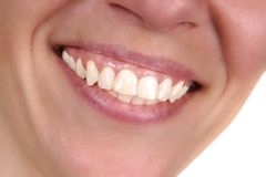 Perfect teeth Royalty Free Stock Photography