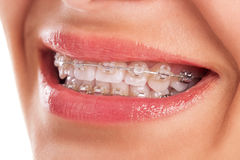 Perfect teeth. With braces isolated Royalty Free Stock Photos