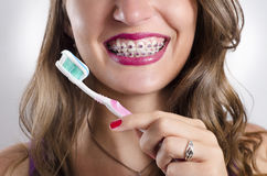 Perfect teeth braces and tooth brush. Young woman with perfect teeth and braces holding toothbrush and toothpaste Royalty Free Stock Images