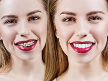 Perfect teeth before and after braces Royalty Free Stock Images