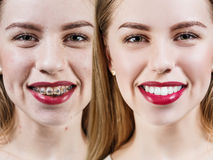 Perfect teeth before and after braces stock image