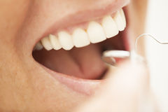 Perfect teeth. Dental care, perfect smile being examined by dentist Royalty Free Stock Image