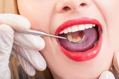 Perfect teeth mirroring Stock Photos