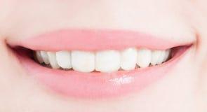 Perfecte vrouwelijke glimlach na het bleken of het witten royalty-vrije stock foto