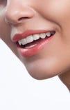 Perfectionnez le sourire après le blanchiment Soins dentaires et dents de blanchiment Images libres de droits