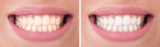 Perfekt kvinnaleende före och efter som bleker eller gör vit arkivbilder