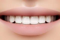 Perfekt leende av den unga härliga kvinnan, perfekta sunda vita tänder Tand- blekmedel, ortodont, omsorgtand och wellness Arkivbilder