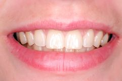 perfekta tänder Arkivbilder