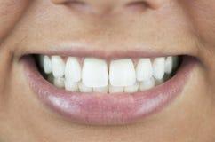 Perfezioni il sorriso, denti bianchi Fotografie Stock