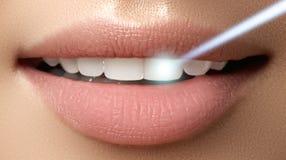 Perfezioni il sorriso dopo candeggio Cure odontoiatriche e denti di imbiancatura immagini stock libere da diritti