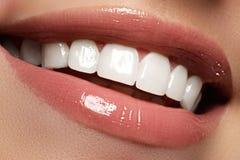Perfezioni il sorriso prima e dopo candeggio Le cure odontoiatriche ed imbiancano fotografia stock