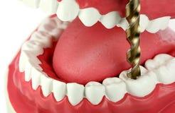 Perfurando um dente Foto de Stock Royalty Free