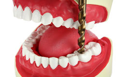 Perfurando um dente Fotografia de Stock Royalty Free