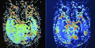 Perfusionbildläsning för hjärna MRI fotografering för bildbyråer