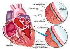 Pericarditis Royalty Free Stock Photography