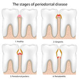 Periodontal Disease. Stages of Periodontal Disease , eps8, gradient and mesh printing compatible Royalty Free Stock Images