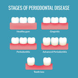 Periodontal Disease Chart Stock Photography