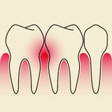 Periodontal Disease stock illustration
