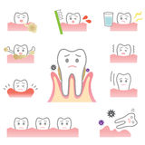 Periodontal disease. Signs of gum disease are swollen or tender gums or other pain in our mouth. bleeding while brushing. sensitivity when drink  cold water. tar Stock Photos