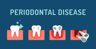 Periodontal disease stage steps vector Stock Photography