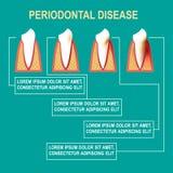 Periodontal disease Vector illustration Stock Photos