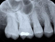 Periodontal X-ray. X-rays revealing periodontal disease of the gum and bone. Desaturated color image in blue stock photo