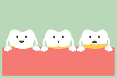 Periodontal ziekte met plaque of tandsteen Stock Afbeelding