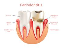 Periodontitis, Inflammation of Gums 3d Realistic. Vector Illustration of Tooth Periodontal Dental Loss. Infection Pulpitis with Plaque vector illustration