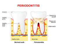 Periodontitis ou pyorrhée illustration de vecteur