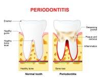 Periodontitis or pyorrhea Stock Image