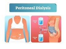 Peritoneale Dialysevektorillustration Beschriftete Methode, zum von Flüssigkeiten auszutauschen stock abbildung