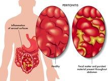 Peritonitis. Medical illustration of the symptoms of peritonitis Stock Photography
