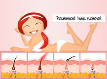 Permanent hair removal Stock Photos