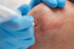 Permanent make up tricopigmentation. MARTY fototesseraprofessional tattooist making permanent make up tricopigmentation Stock Photos