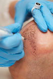 Permanent make up tricopigmentation Stock Photography