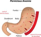 Pernicieuze anemie stock illustratie