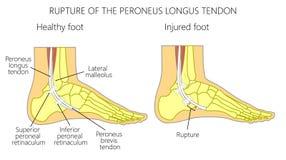 Peroneal Ścięgnowy Injuries_Rupture peroneus longus ścięgno Fotografia Stock