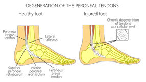 Peroneal Tendon Injuries_Degeneration of the peroneus longus and. Vector illustration of Peroneal Tendon Injuries. Degeneration of the peroneus longus and brevis Royalty Free Stock Photography