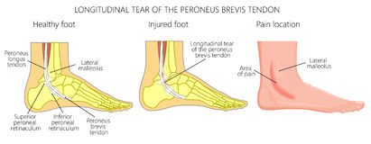 Peroneal Tendon Injuries_Longitudinal tear of the peroneus brevi. Vector illustration of Peroneal Tendon Injuries. Longitudinal tear of the peroneus brevis Royalty Free Stock Image