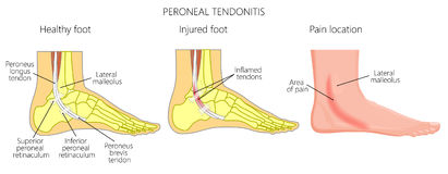 Peroneal Tendon Injuries_Peroneal tendonitis. Vector illustration of Peroneal Tendon Injuries. Peroneal tendonitis. Inflammation of peroneal tendons. Lateral Royalty Free Stock Photos