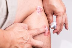 Person applying antiseptic cream onto painful wound. Person applying white antiseptic cream onto painful wound from abrasive fall stock image